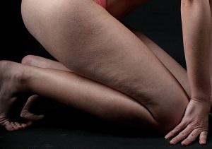 Dokonalé nohy, aneb jak zatočit s celulitidou
